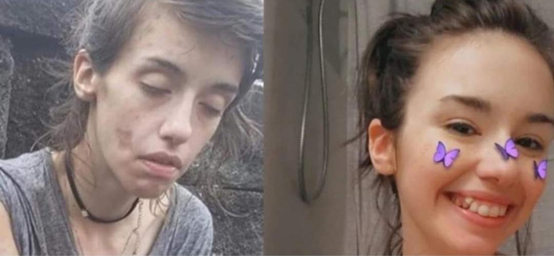 La desgarradora imagen de una joven adicta a las drogas y su poderoso mensaje