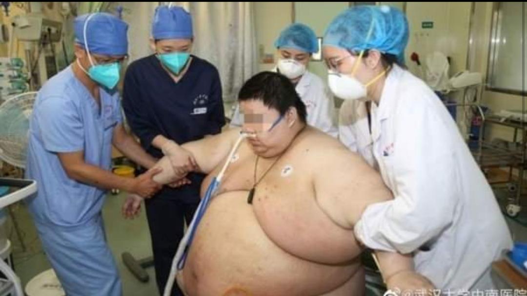 Coronavirus: estuvo cinco meses en cuarentena, llegó a pesar 280 kilos y los médicos no querían atenderlo