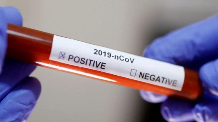 La OMS reconoció que el Covid-19 podría dejar de ser pandemia y volverse endémico