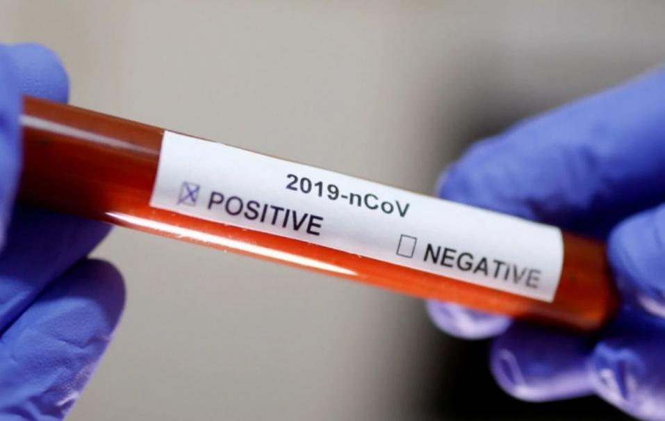 Los contagios no bajan: hoy confirmaron 282 nuevos casos de coronavirus en Tierra del Fuego