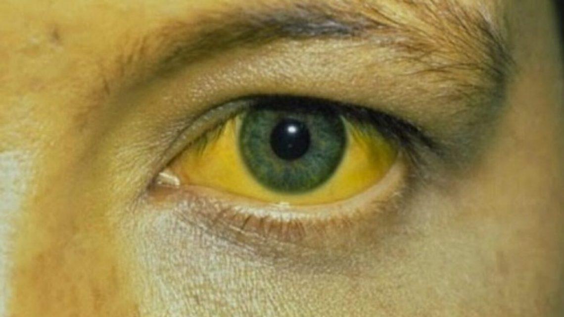 Usó una mascarilla facial y terminó con la cara amarilla por 2 días