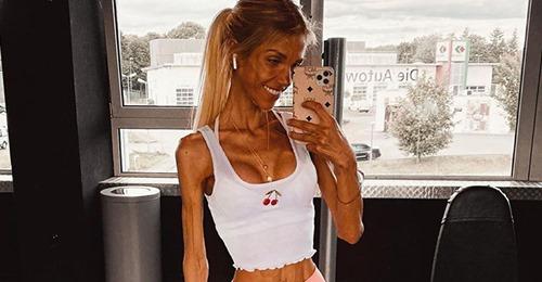 Murió la influencer de 24 años que mostraba su lucha contra la anorexia