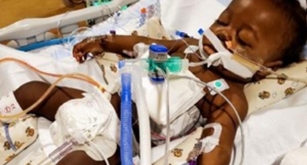 El «bebé milagro» que superó el coronavirus y un trasplante de hígado