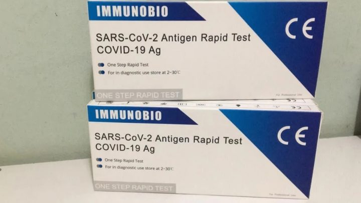 Test rápido de antígeno: se vende en farmacias y detecta el coronavirus en 10 minutos