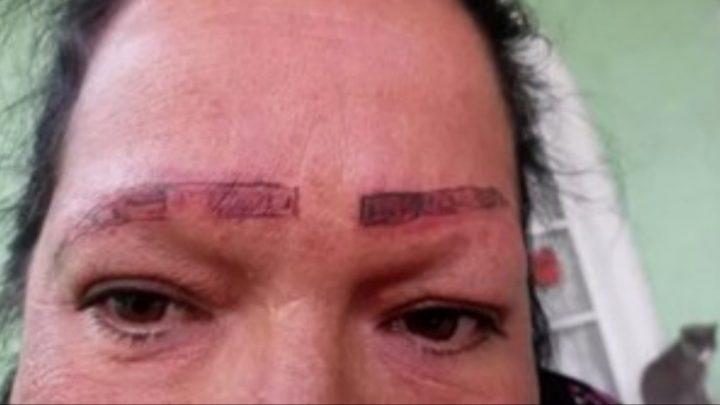 Una mujer se fue a tatuar las cejas y terminó con cicatrices y quemaduras en la cara